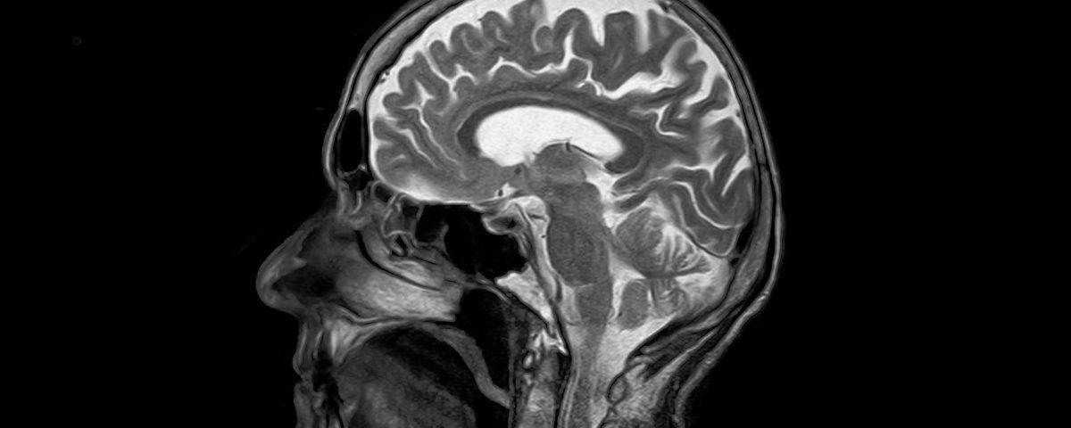 Neurologie Bobath Kgzns Pnf Therapie Kg